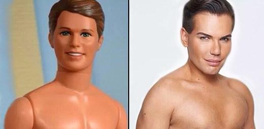 Instagram: Rodrigo Alves chtěl vypadat jako plastikový Ken, málem ale zemřel!